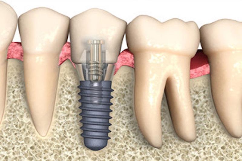 Chirurgia-Implantare.jpg
