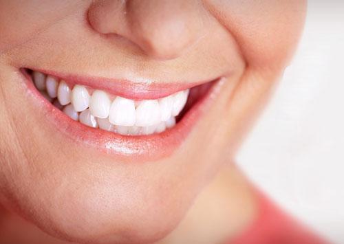 sbiancamento-denti.jpg