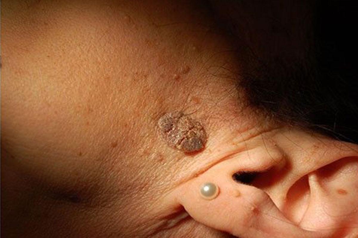 epitheliális papilloma daganatok szemrák gyermekeknél